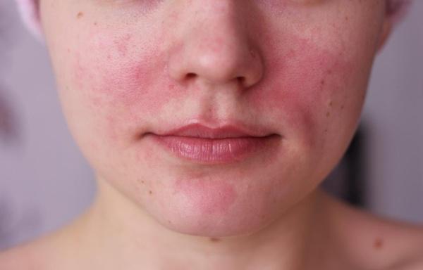 szára, piros foltok - Bőrbetegségek