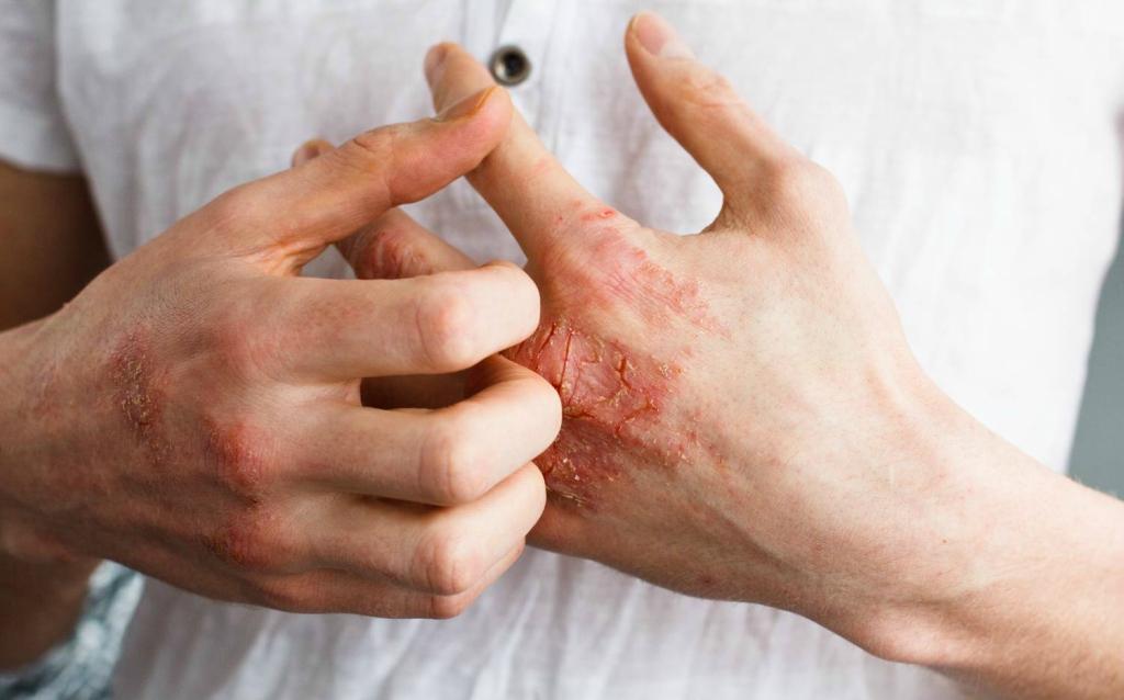 gygyszer pikkelysömörhöz terhes nknek vörös folt jelent meg a viszketõ lábán