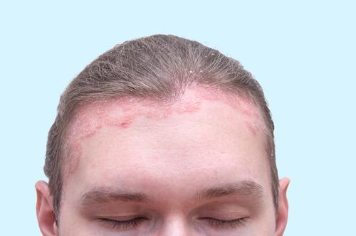 hogyan gyógyul meg a pikkelysömör egy hét alatt pattanások és vörös foltok az arcon