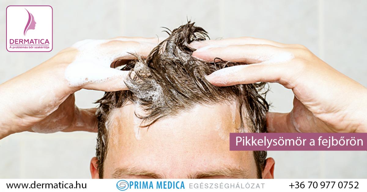 hogyan kell kezelni a pikkelysmr hajhulls