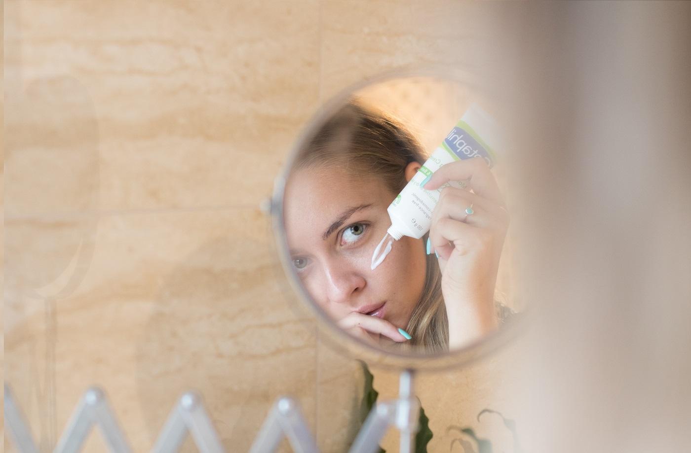 hogyan kell kezelni a pikkelysömör sas