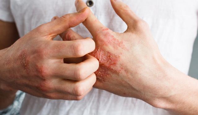hogyan kezeljük a kezet és a könyök pikkelysömörét pikkelysömör kenőcs telefonon