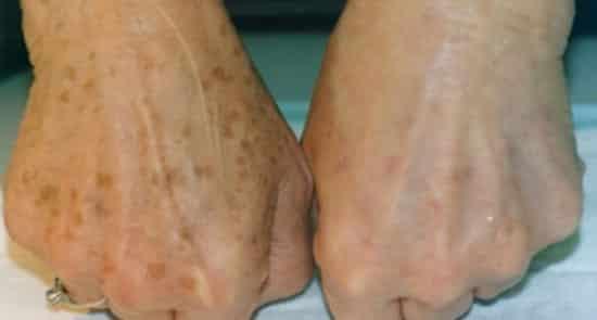 a korábbi pikkelysömör kezelt Hogyan gyógyítja a pikkelysömör a magneziával