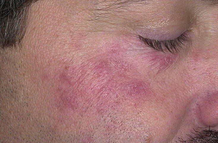 hogyan lehet megszabadulni a férfi arcán a vörös foltoktól kenőcs pikkelysömör biopin vélemények
