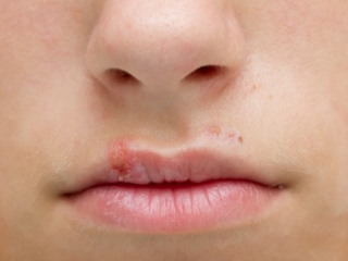 Típusok, az arc megfosztása és a kezelés módjai