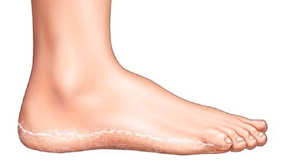 hogyan lehet megszabadulni a lábak közötti vörös foltoktól hogyan lehet pikkelysömör kezelésére népi gyógymódokkal otthon