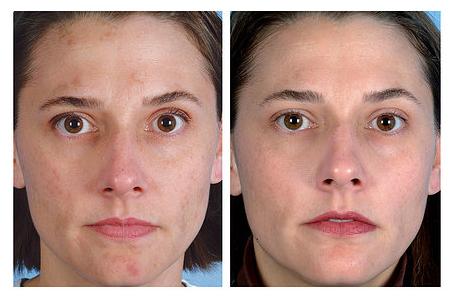 irritáció az arcon az orr körül vörös foltok formájában pikkelysömör gyógynövényekkel