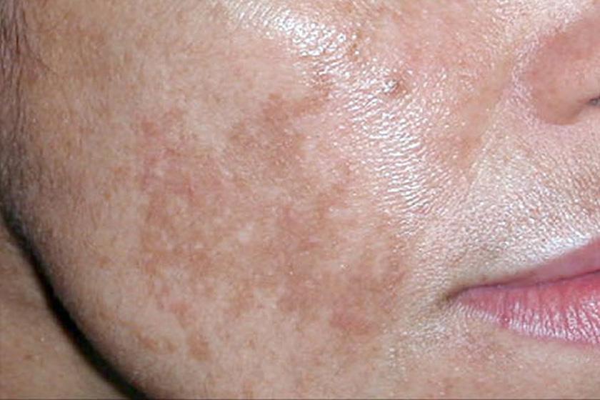 kenőcs az arcon lévő vörös foltok ellen pikkelysömör fotó a kezek kezelsre
