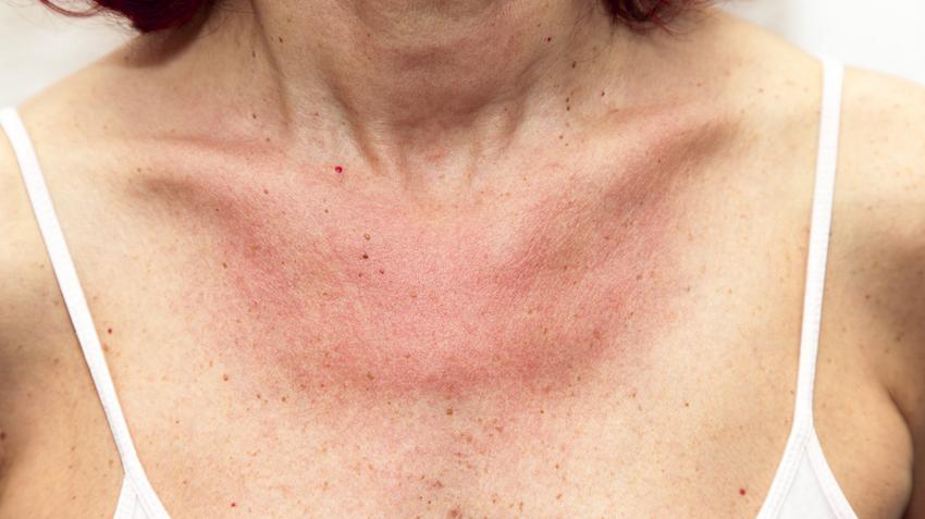 kiütés a bőrön vörös foltok formájában felnőtteknél viszketés nélkül fotó