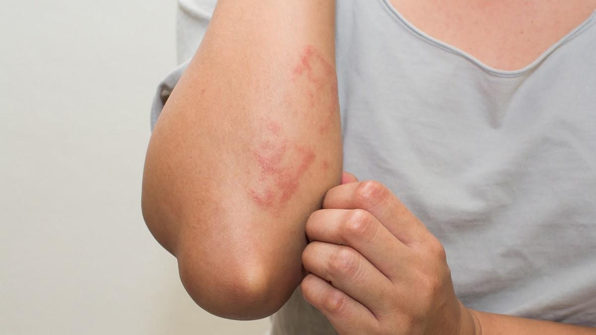 kiütések a lábakon vörös foltok formájában regressziv psoriasis kezelése