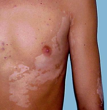 miért viszket a lábán a piros folt pikkelysömör súlyosbodásának kezelése otthon