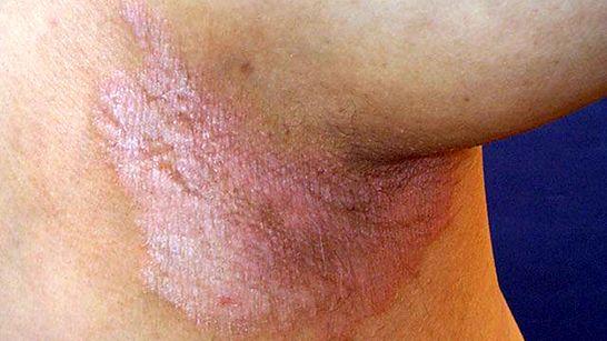 pikkelysömör alternatív kezelési módszerek réz-szulfát pikkelysömör kezelése