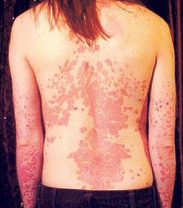 vörös foltok jelentek meg a testen, és a fénykép leválik