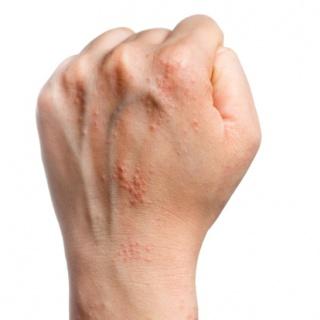 pikkelysömör fotók és kezelési módszerek a sertés bőrén vörös foltok vannak