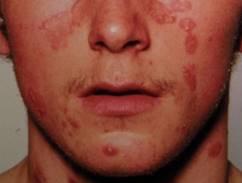 nitrogén kezelés pikkelysömörhöz a keleti gipsz varázsa a pikkelysömörhöz