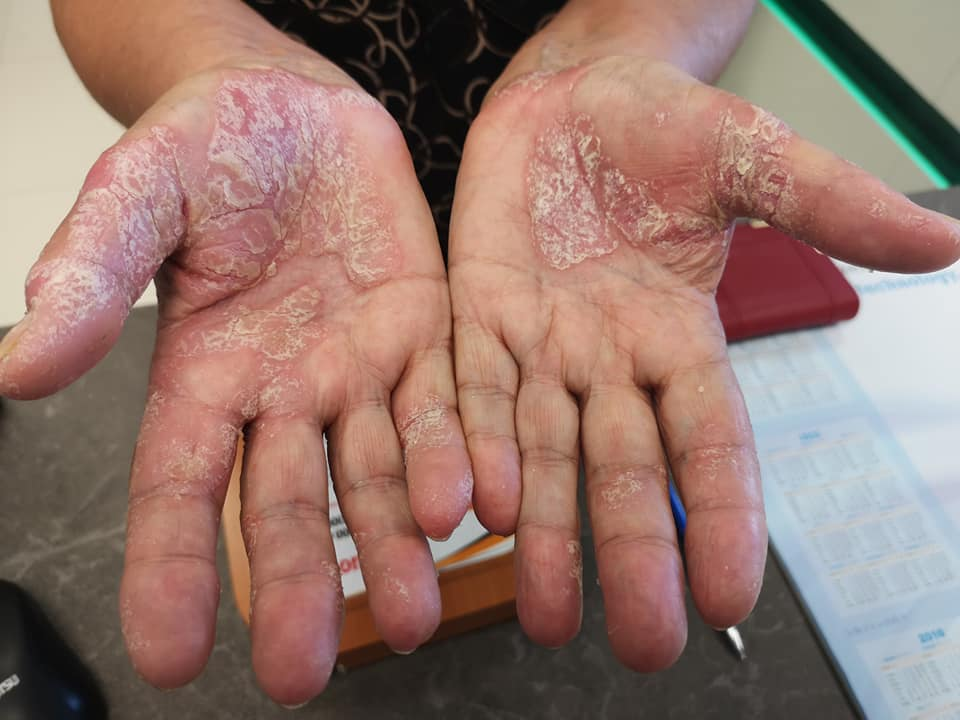pikkelysömör fotó a kezeken tünetek és kezelés