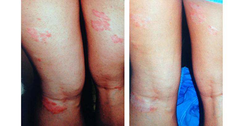 pikkelysömör inverz kezelés gyógyszer pikkelysömörre infliximab remicade