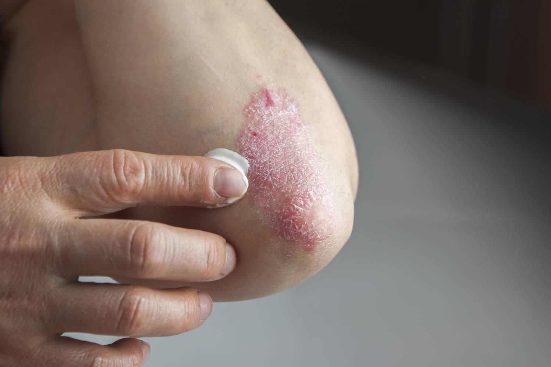 pikkelysömör tünetei, okai és kezelése