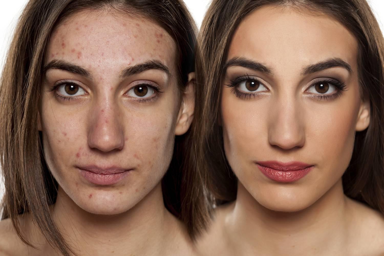 problémás bőr vörös foltok
