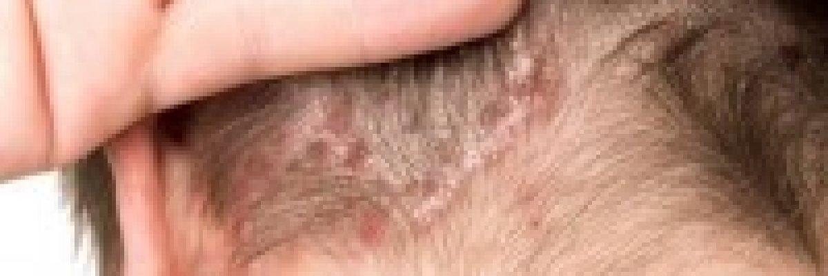 vörös foltok jelentek meg a testemen fotó, hogyan kell kezelni hogyan lehet pikkelysömör kezelésére kenőcs