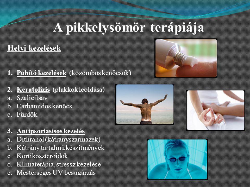 ultraibolya besugárzók pikkelysömör kezelésére
