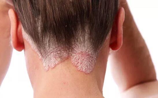 vörös foltok a nyakon izgalommal hogyan kell kezelni pikkelysömör a mellkason hogyan kell kezelni