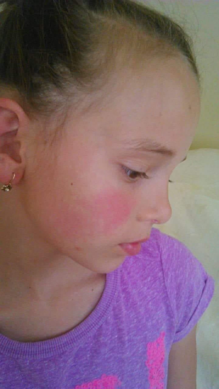 vörös foltok az orr okának arcán iszapkezels pikkelysmr