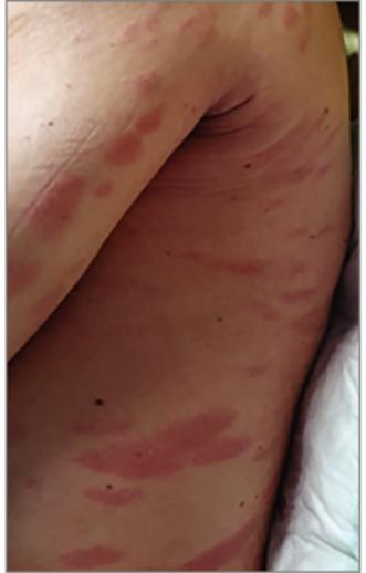 vörös pikkelyes foltok a háton és a karokon vélemények a pikkelysömör kezeléséről az arcon