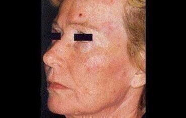 vörös foltok viszketnek a szem közelében az arcon lévő száraz foltok nem vörösek