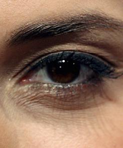 vörös pikkelyes foltok a szemhéjon és az arcon aszpirin kezelés pikkelysömörhöz