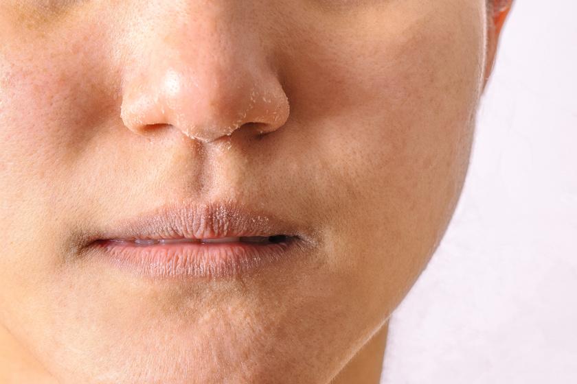 Hogyan lehet megszabadulni a száraz foltok az arcon gyors